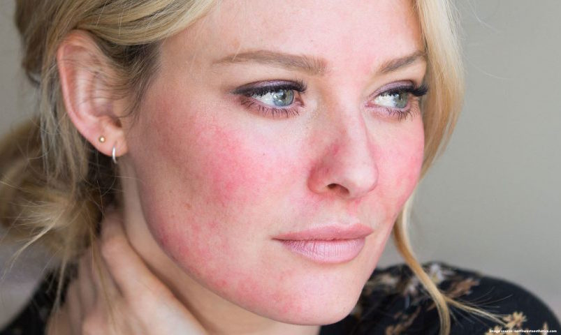 Redness & Inflammation Be Gone: Cecilia's Guide to Keeping Rosacea Symptoms at Bay